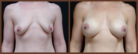 Breast augmentation virginia beach norfolk associates jpg 1134x450